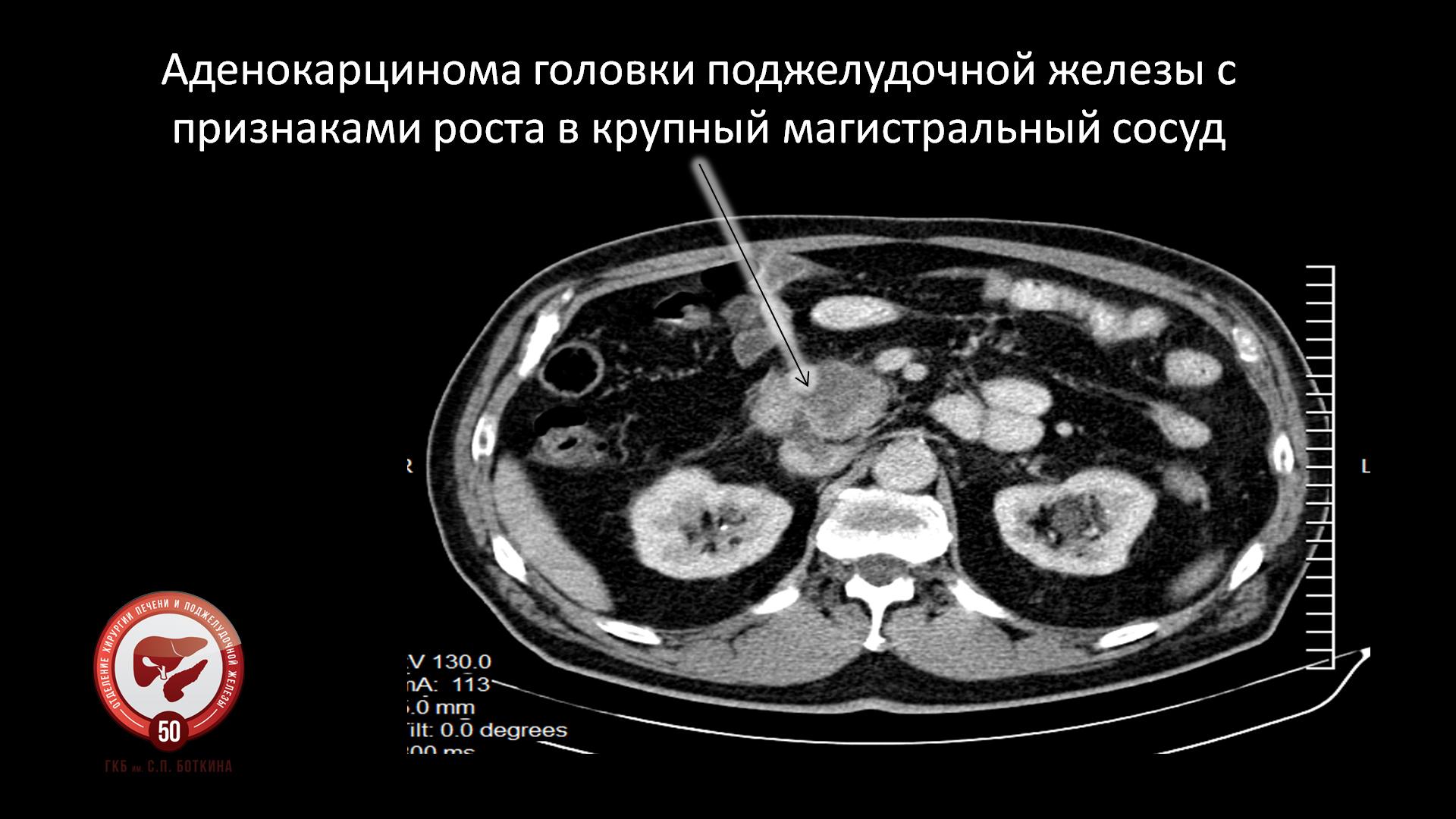 Брянск детская областная больница врачи