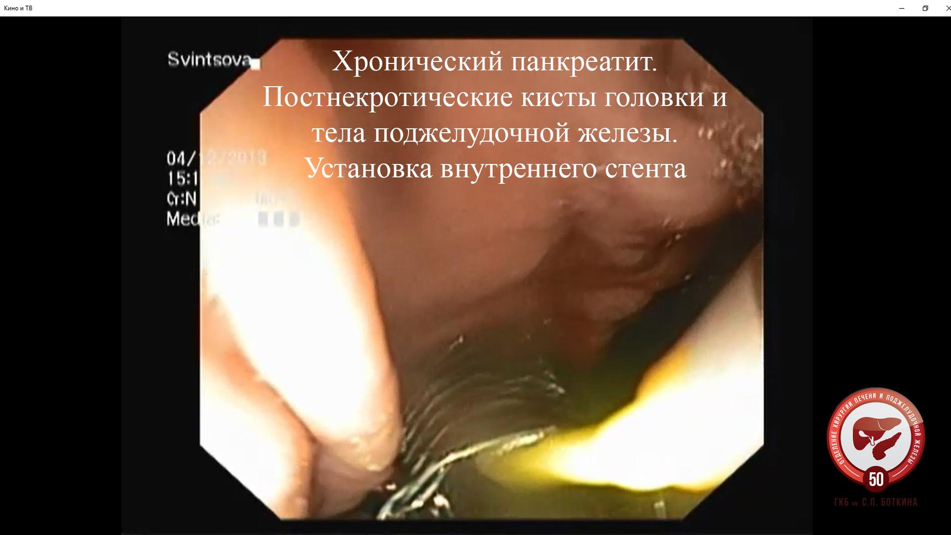 Запись к врачу стоматологическая поликлиника 32 г.москва