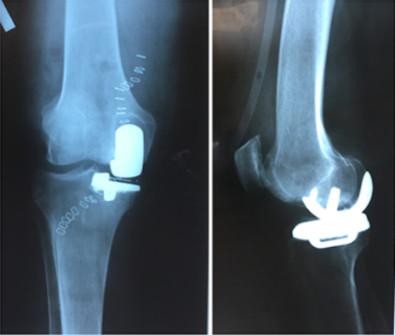 Эндопротезирование суставов москва упражнения при контрактуре голеностопного сустава