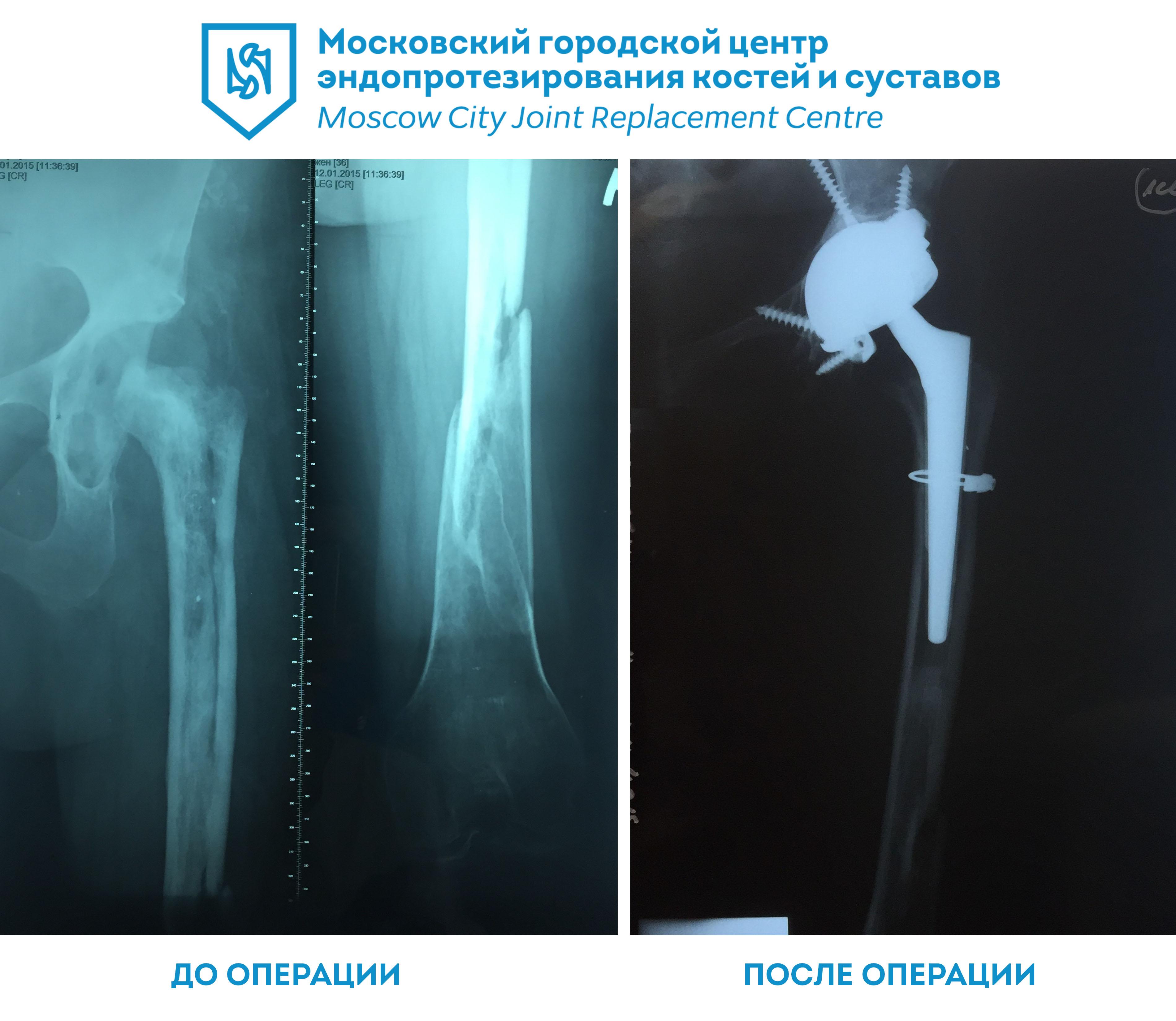 Центр суставы москва первичное эндопротезирование коленного сустава