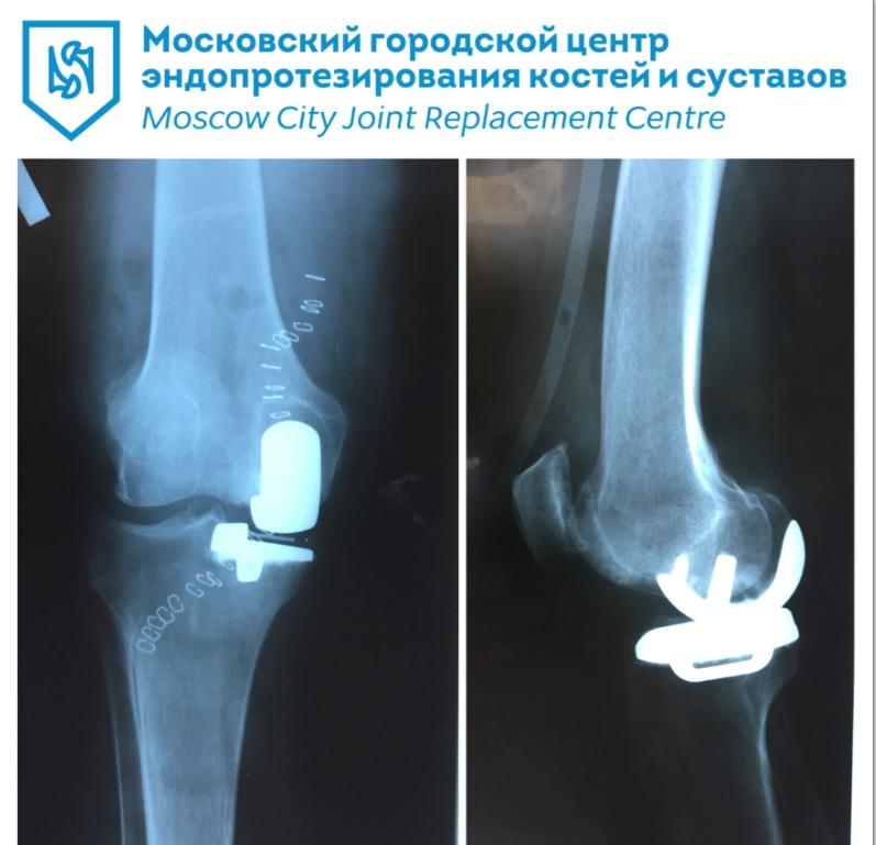 Клиники москвы по протезированию коленных суставов акулий жир крем для суставов купить в минске