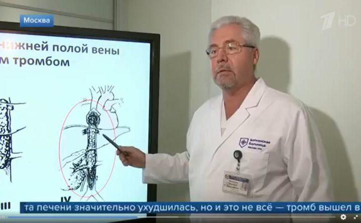 Удаление опухолевого тромба: уникальная операция хирургов Боткинской и МНИОИ Герцена
